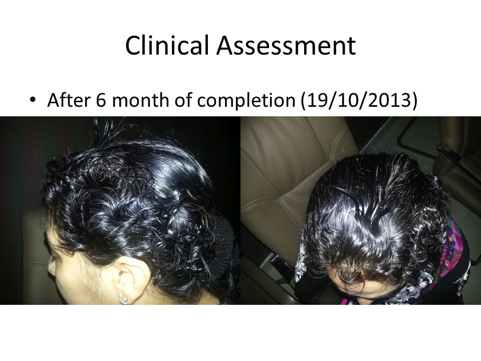 Clinical Assessment After 6 month of completion (19/10/2013)