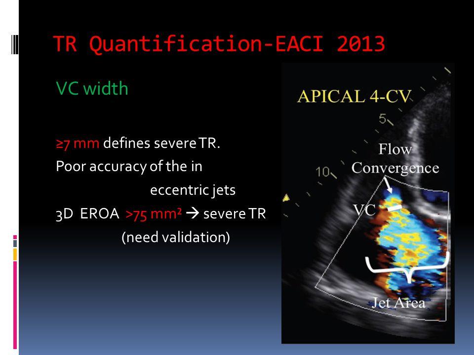 TR Quantification-EACI 2013 Flow convergence method (PISA)  EROA ≥40 mm² or  RVol of ≥45 mL indicates severe TR.