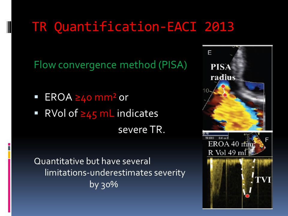 TR Quantification-EACI 2013 Flow convergence method (PISA)  EROA ≥40 mm² or  RVol of ≥45 mL indicates severe TR.