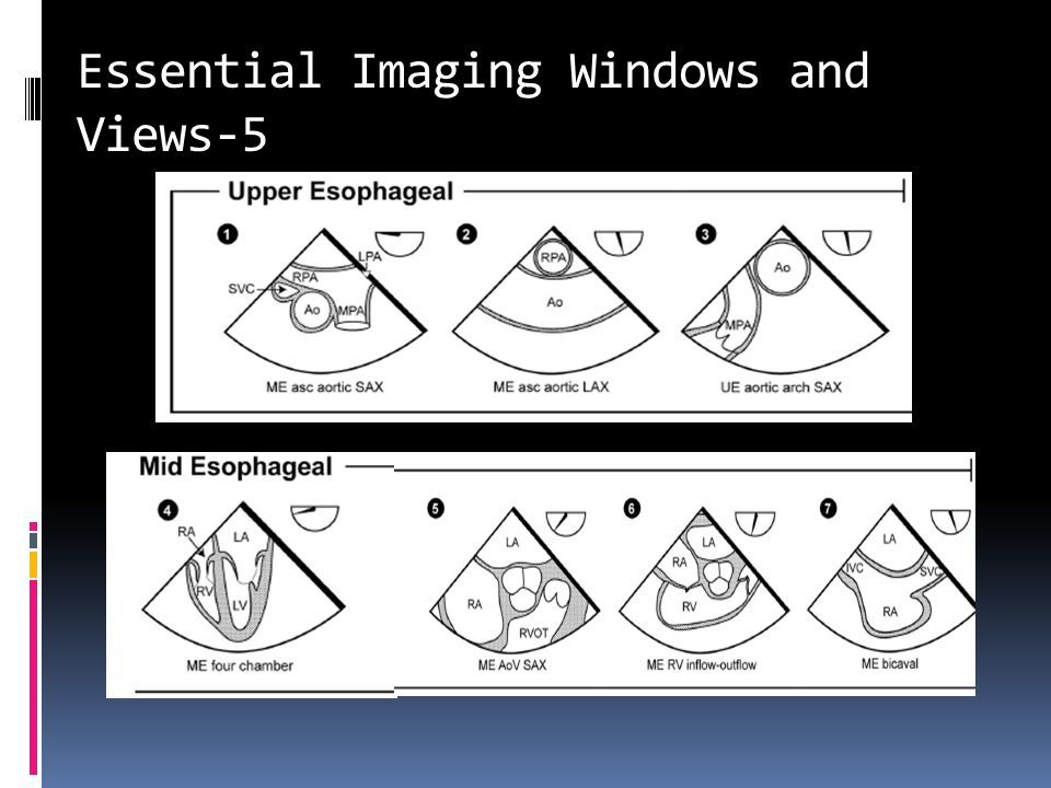 Essential Imaging Windows and Views-5
