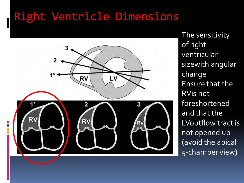 Right Ventricle Dimensions The sensitivity of right ventricular sizewith angular change Ensure that the RVis not foreshortened and that the LVoutflow tract is not opened up (avoid the apical 5-chamber view)