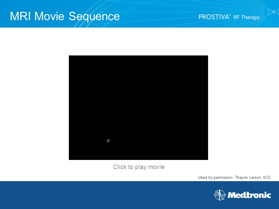 MRI Movie Sequence Used by permission - Thayne Larson, M.D. Click to play movie