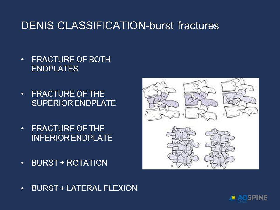DENIS CLASSIFICATION-burst fractures FRACTURE OF BOTH ENDPLATES FRACTURE OF THE SUPERIOR ENDPLATE FRACTURE OF THE INFERIOR ENDPLATE BURST + ROTATION B