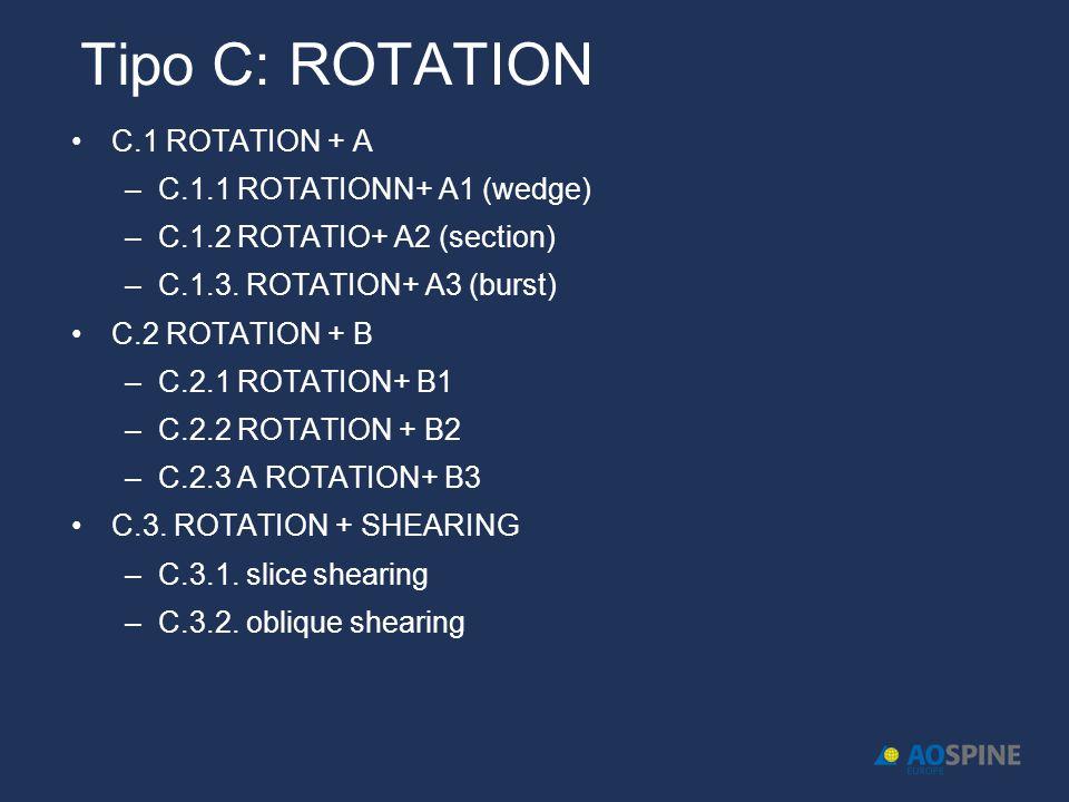 Tipo C: ROTATION C.1 ROTATION + A –C.1.1 ROTATIONN+ A1 (wedge) –C.1.2 ROTATIO+ A2 (section) –C.1.3.