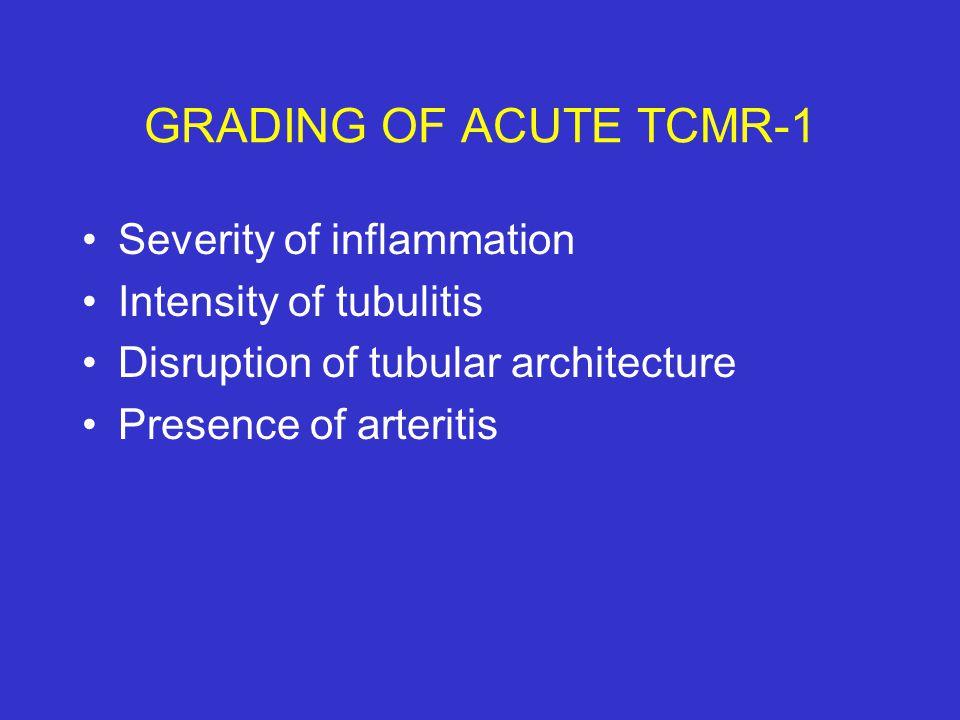 GRADING OF ACUTE TCMR-1 Severity of inflammation Intensity of tubulitis Disruption of tubular architecture Presence of arteritis