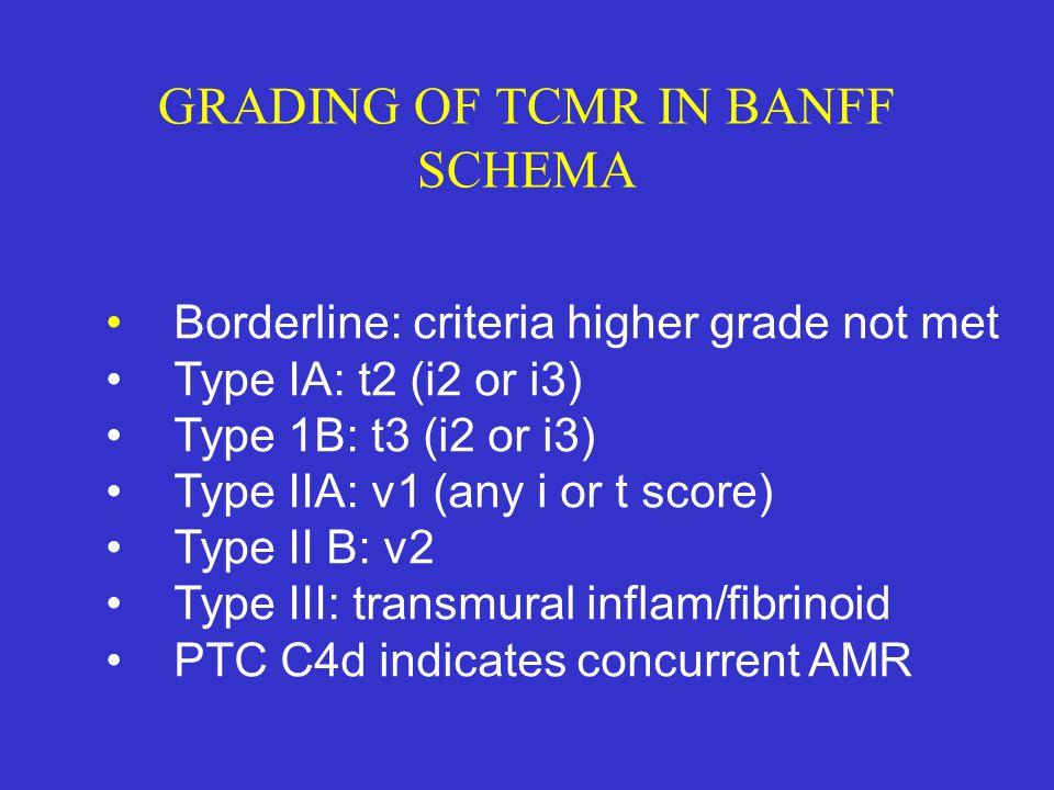 GRADING OF TCMR IN BANFF SCHEMA Borderline: criteria higher grade not met Type IA: t2 (i2 or i3) Type 1B: t3 (i2 or i3) Type IIA: v1 (any i or t score