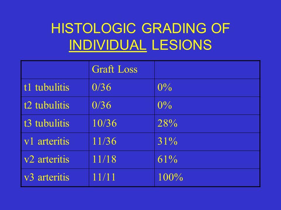 HISTOLOGIC GRADING OF INDIVIDUAL LESIONS Graft Loss t1 tubulitis0/360% t2 tubulitis0/360% t3 tubulitis10/3628% v1 arteritis11/3631% v2 arteritis11/186