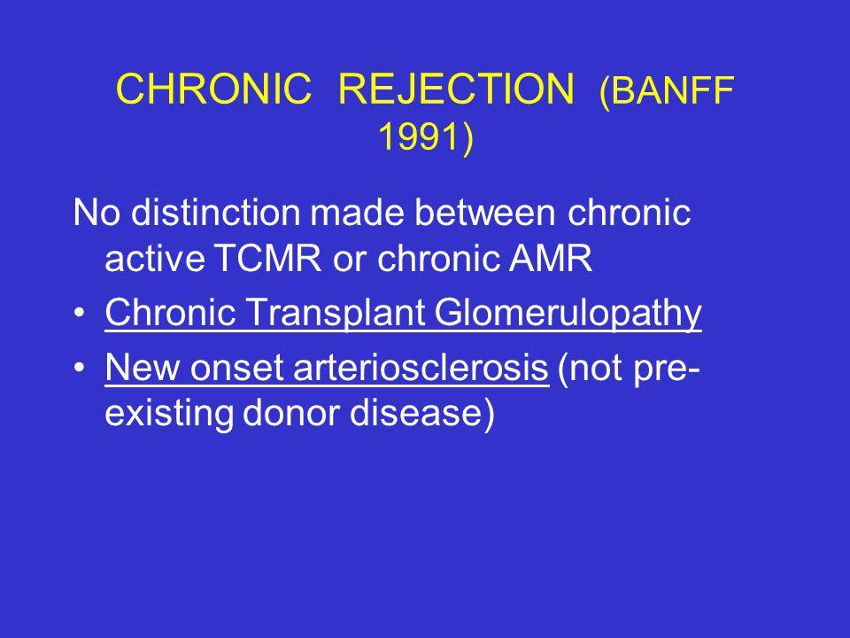 CHRONIC REJECTION (BANFF 1991) No distinction made between chronic active TCMR or chronic AMR Chronic Transplant Glomerulopathy New onset arterioscler