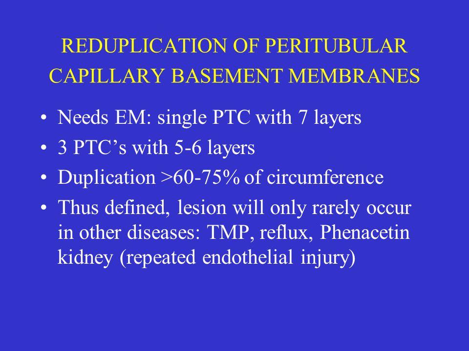 REDUPLICATION OF PERITUBULAR CAPILLARY BASEMENT MEMBRANES Needs EM: single PTC with 7 layers 3 PTC's with 5-6 layers Duplication >60-75% of circumfere