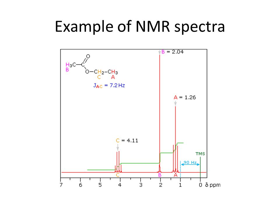 Example of NMR spectra