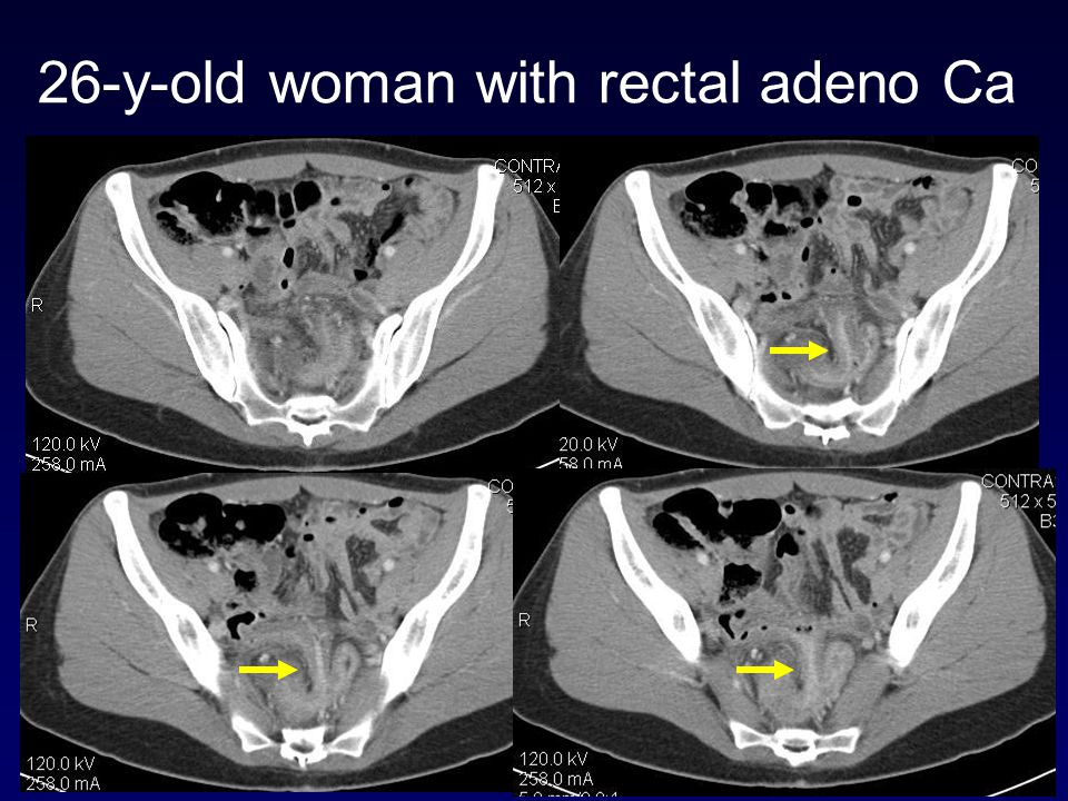26-y-old woman with rectal adeno Ca