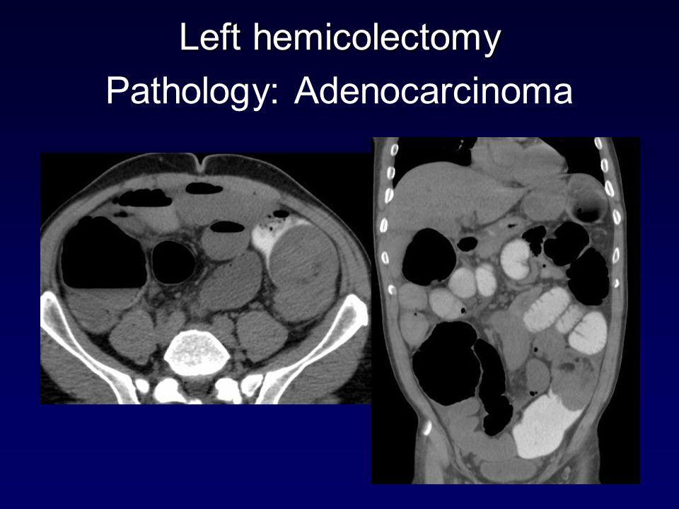 Left hemicolectomy Left hemicolectomy Pathology: Adenocarcinoma