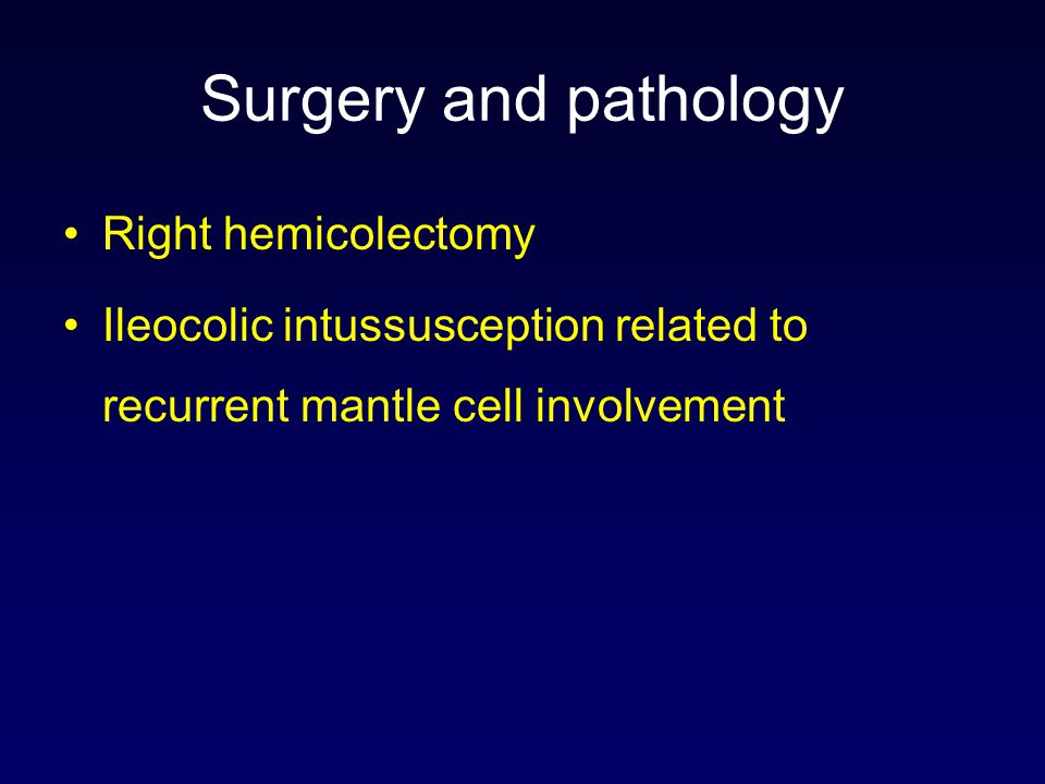 Surgery and pathology Right hemicolectomy Ileocolic intussusception related to recurrent mantle cell involvement