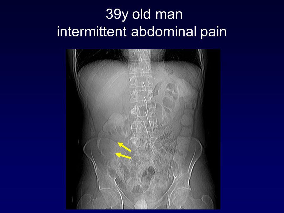 39y old man intermittent abdominal pain