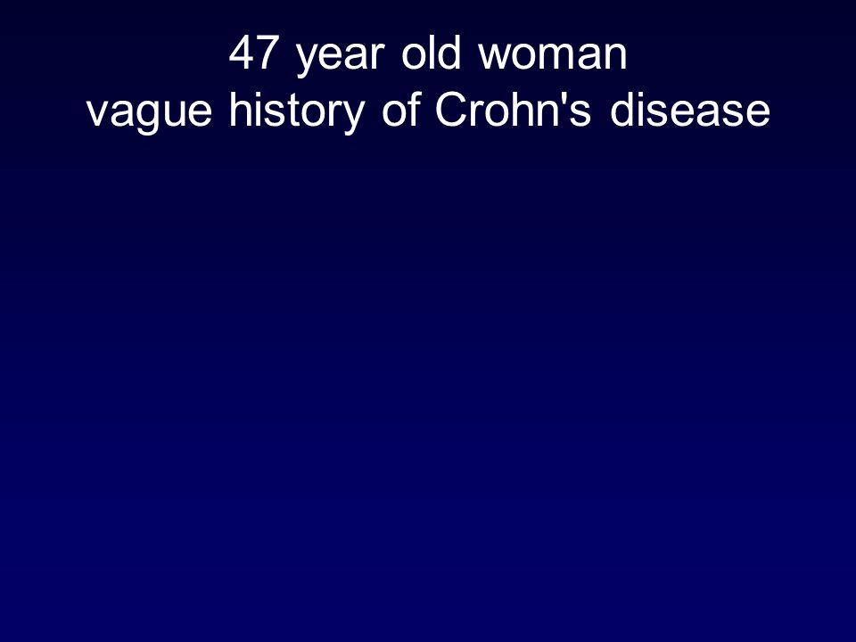 47 year old woman vague history of Crohn's disease