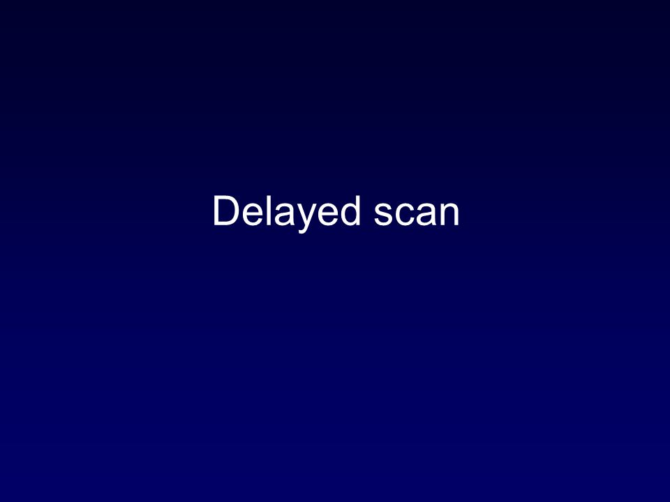 Delayed scan