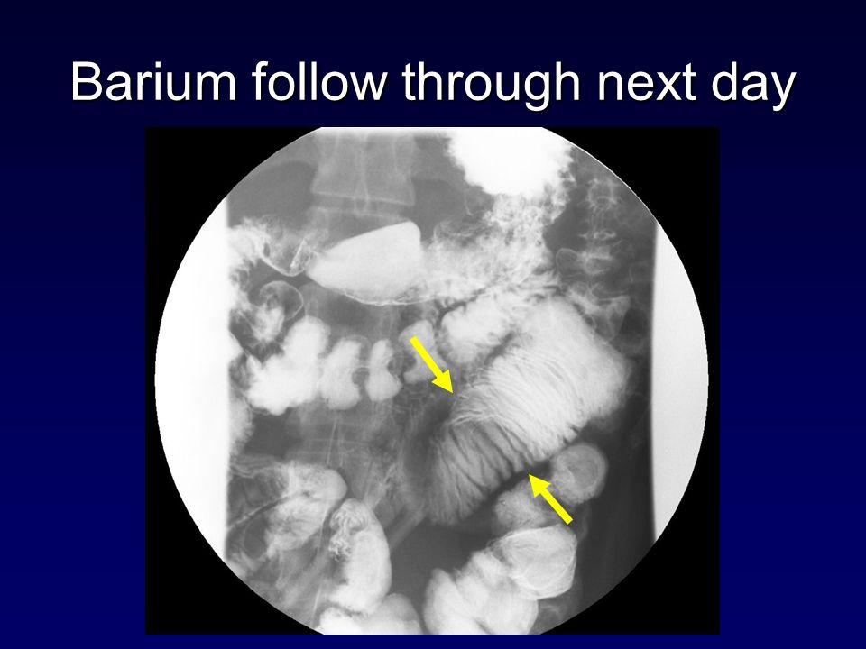 Barium follow through next day