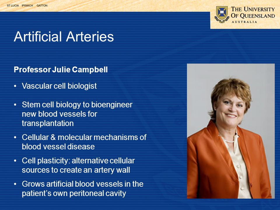 Professor Julie Campbell Vascular cell biologist Stem cell biology to bioengineer new blood vessels for transplantation Cellular & molecular mechanisms of blood vessel disease Cell plasticity: alternative cellular sources to create an artery wall Grows artificial blood vessels in the patient's own peritoneal cavity Artificial Arteries