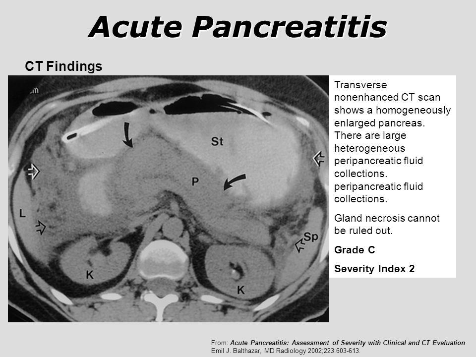 Acute Pancreatitis CT Findings Transverse nonenhanced CT scan shows a homogeneously enlarged pancreas. There are large heterogeneous peripancreatic fl