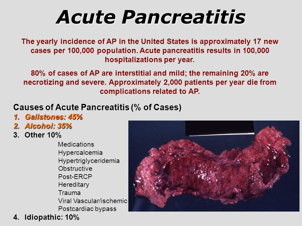 Acute Pancreatitis Causes of Acute Pancreatitis (% of Cases) 1.Gallstones: 45% 2.Alcohol: 35% 3.Other 10% Medications Hypercalcemia Hypertriglyceridem