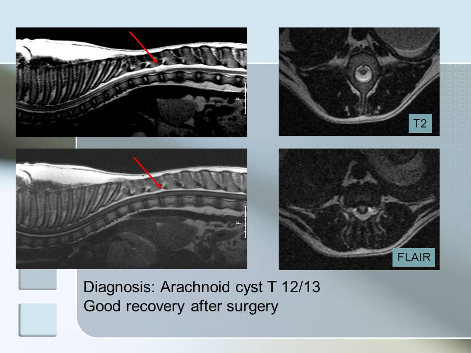T2 FLAIR Diagnosis: Arachnoid cyst T 12/13 Good recovery after surgery