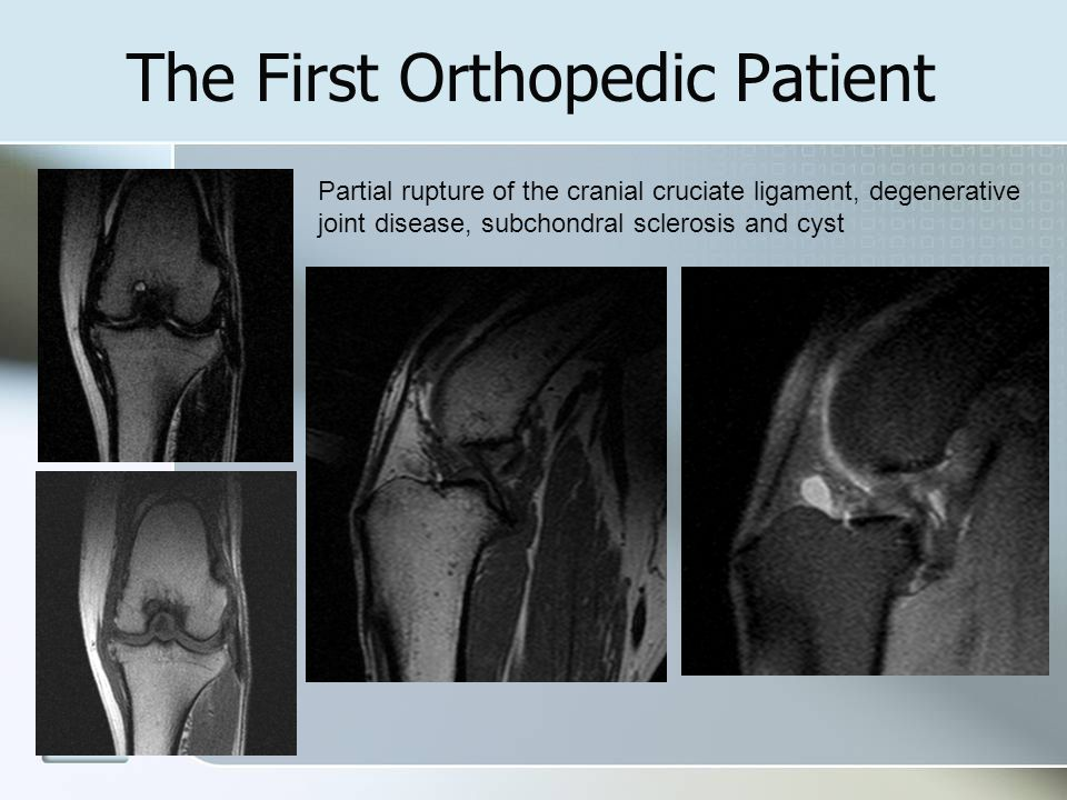 The First Orthopedic Patient Partial rupture of the cranial cruciate ligament, degenerative joint disease, subchondral sclerosis and cyst