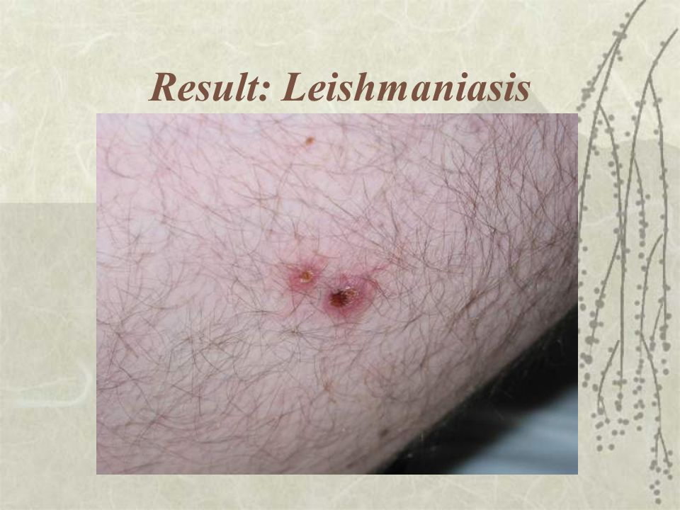 Result: Leishmaniasis