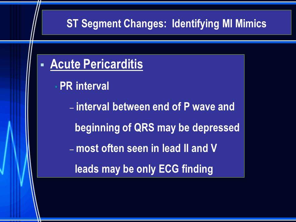  Acute Pericarditis PR interval – interval between end of P wave and beginning of QRS may be depressed – most often seen in lead II and V leads may b