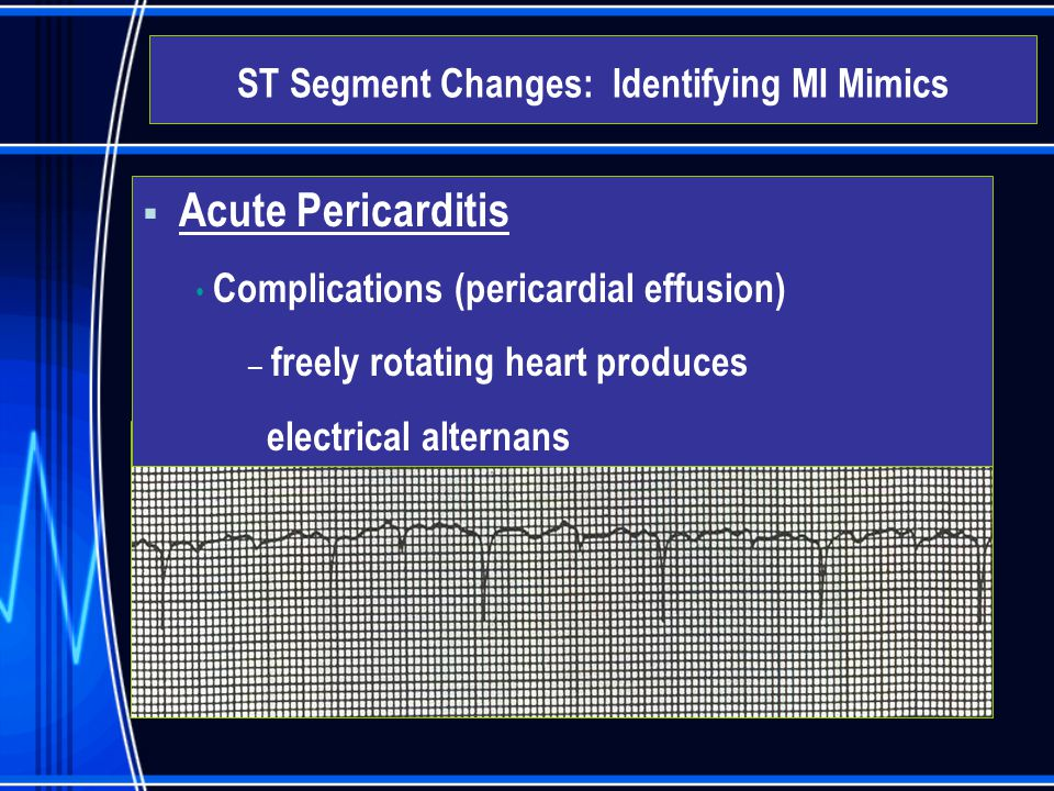  Acute Pericarditis Complications (pericardial effusion) – freely rotating heart produces electrical alternans ST Segment Changes: Identifying MI Mim
