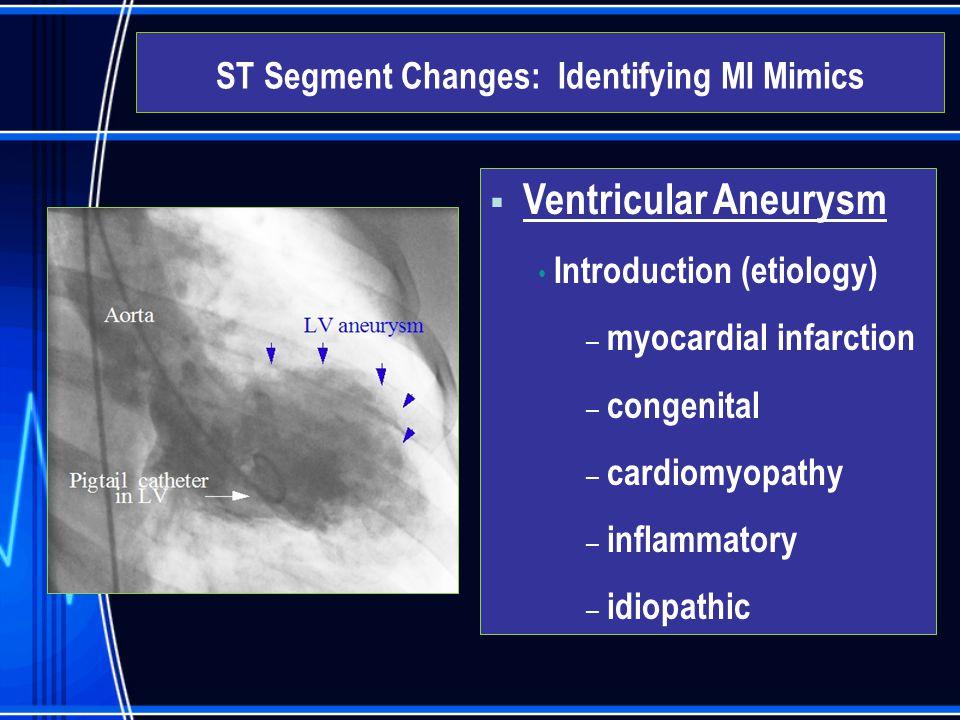  Ventricular Aneurysm Introduction (etiology) – myocardial infarction – congenital – cardiomyopathy – inflammatory – idiopathic ST Segment Changes: I