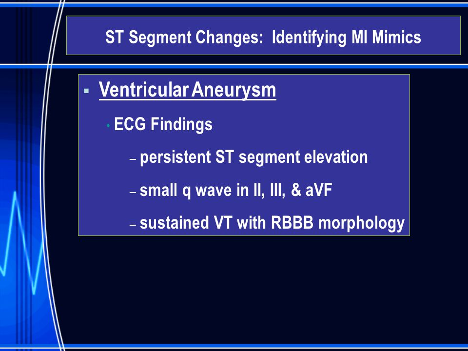  Ventricular Aneurysm ECG Findings – persistent ST segment elevation – small q wave in II, III, & aVF – sustained VT with RBBB morphology ST Segment