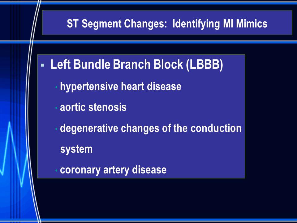 Left Bundle Branch Block (LBBB) hypertensive heart disease aortic stenosis degenerative changes of the conduction system coronary artery disease ST