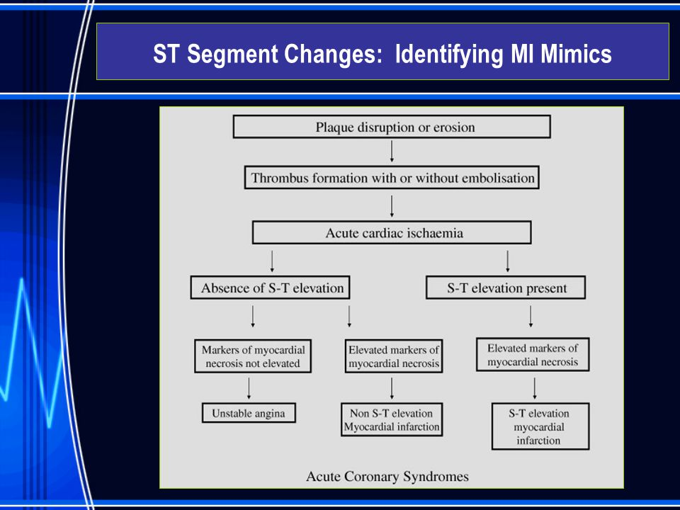  Acute Coronary Syndromes – Clinical Symptoms typical atypical ST Segment Changes: Identifying MI Mimics