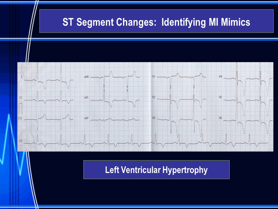 Left Ventricular Hypertrophy ST Segment Changes: Identifying MI Mimics