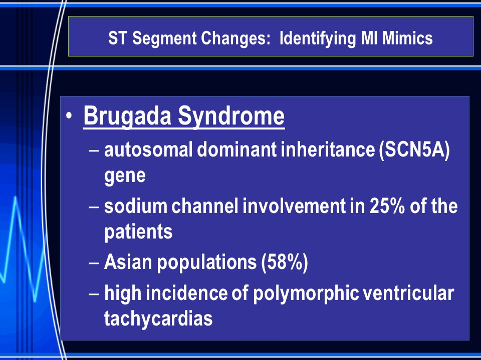 Brugada Syndrome – autosomal dominant inheritance (SCN5A) gene – sodium channel involvement in 25% of the patients – Asian populations (58%) – high in
