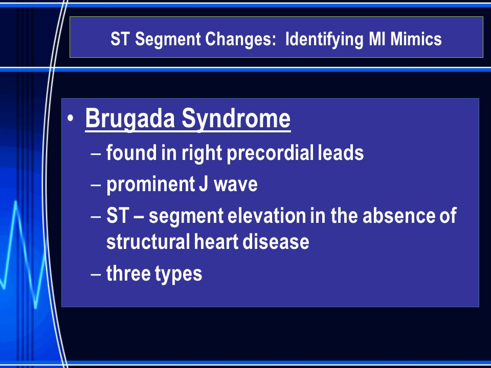 Brugada Syndrome – found in right precordial leads – prominent J wave – ST – segment elevation in the absence of structural heart disease – three type