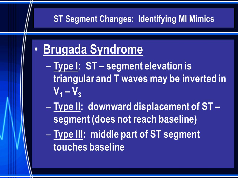 Brugada Syndrome – Type I: ST – segment elevation is triangular and T waves may be inverted in V 1 – V 3 – Type II: downward displacement of ST – segm