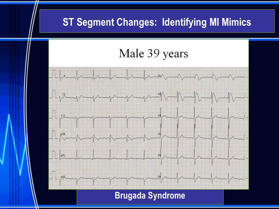 Brugada Syndrome ST Segment Changes: Identifying MI Mimics