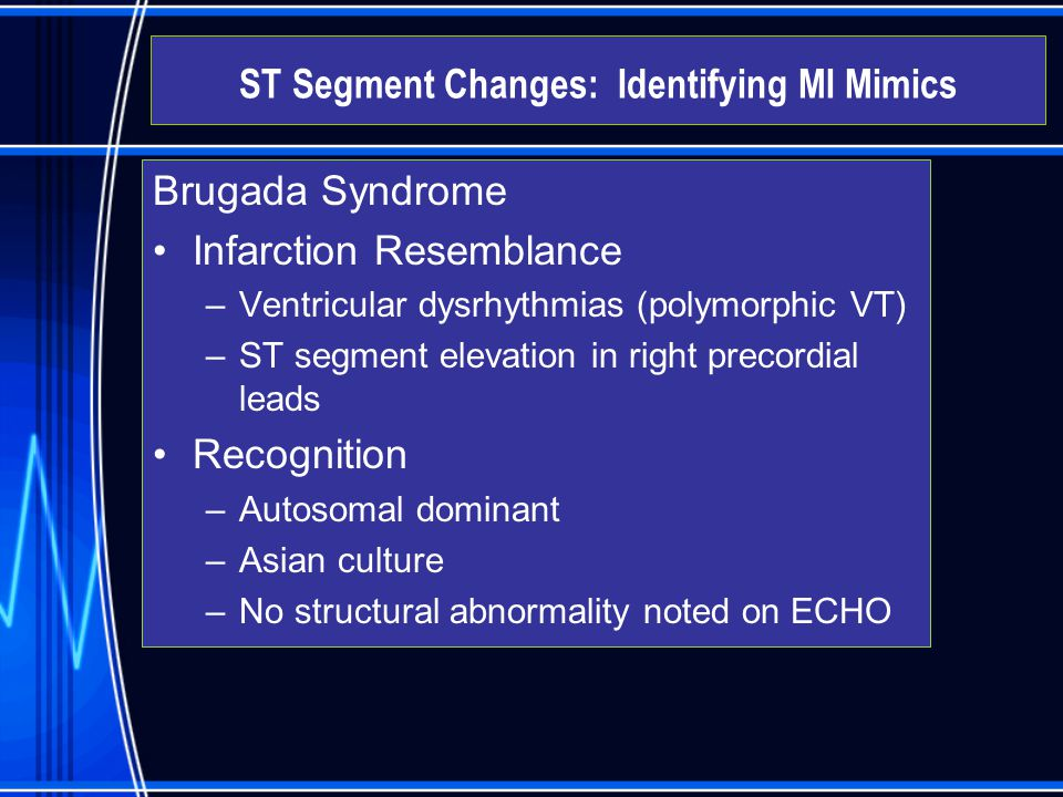 Brugada Syndrome Infarction Resemblance –Ventricular dysrhythmias (polymorphic VT) –ST segment elevation in right precordial leads Recognition –Autoso