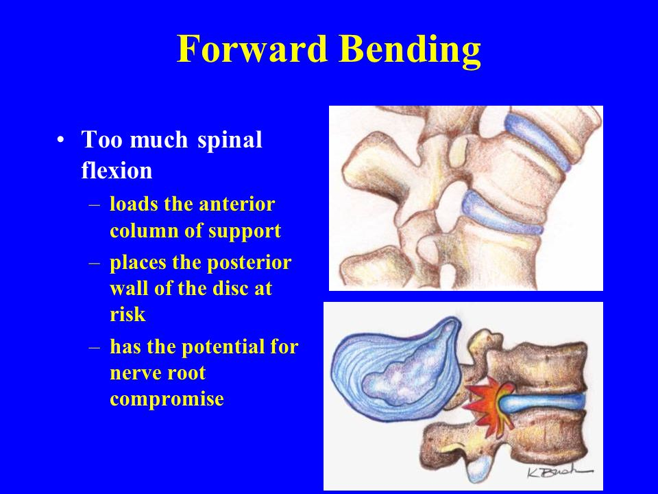 Forward Bending Too much spinal flexion –loads the anterior column of support –places the posterior wall of the disc at risk –has the potential for ne