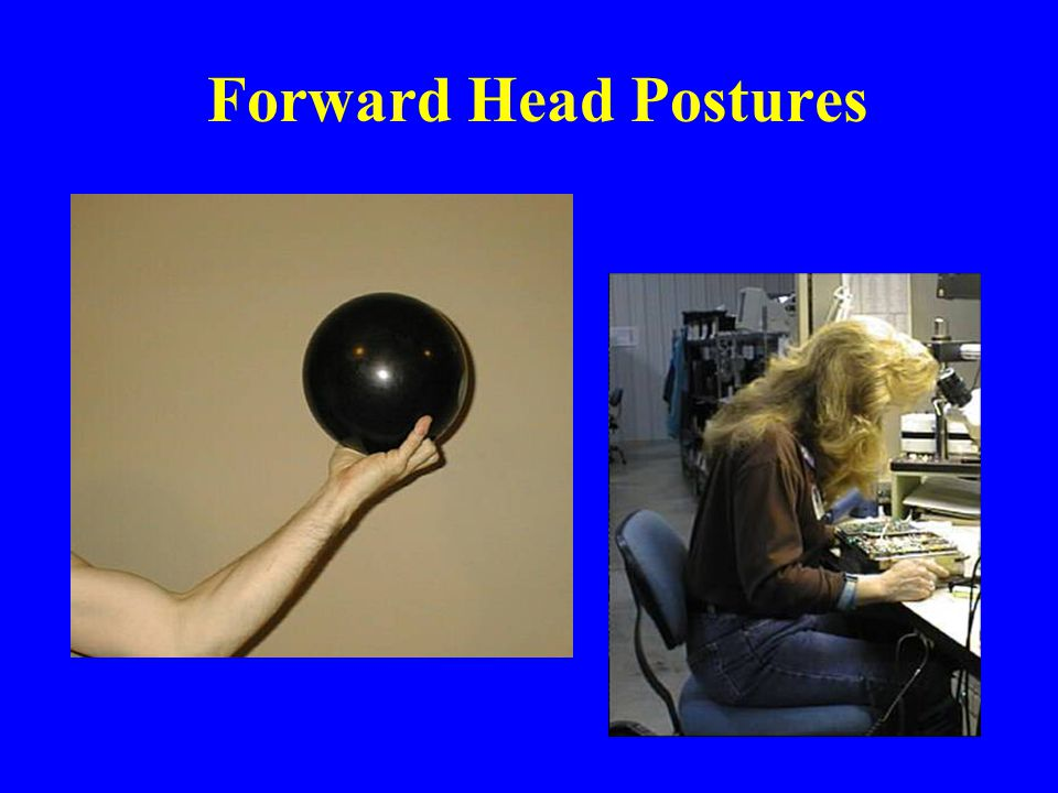 Forward Head Postures