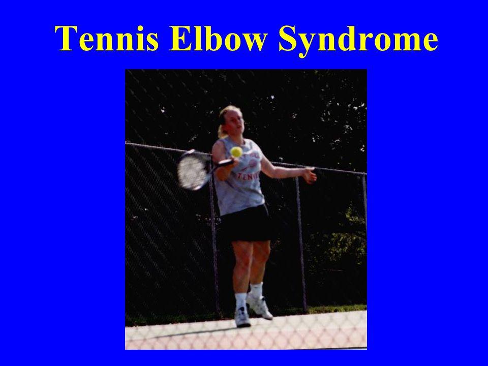 Tennis Elbow Syndrome