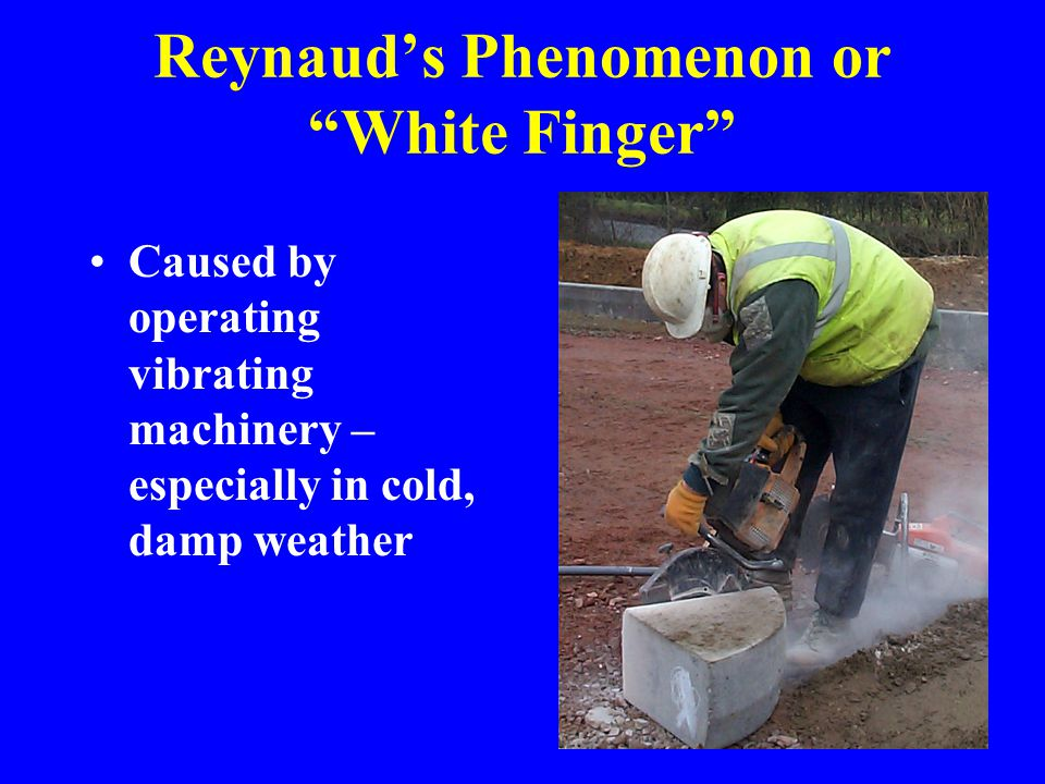 """Reynaud's Phenomenon or """"White Finger"""" Caused by operating vibrating machinery – especially in cold, damp weather"""