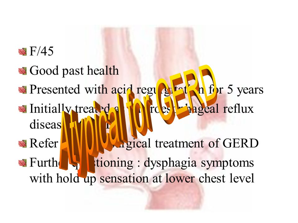 F/45 Good past health Presented with acid regurgitation for 5 years Initially treated as gastroesophageal reflux disease ( GERD ) Refer to us for surg