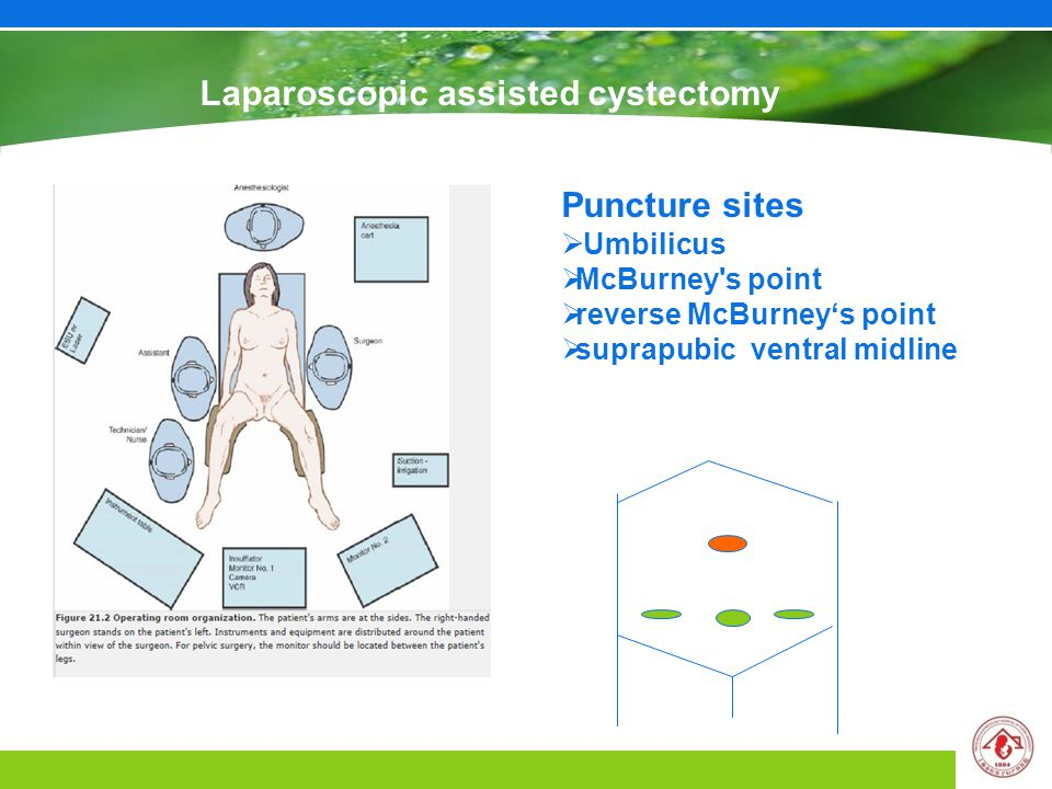 Laparoscopic assisted cystectomy Puncture sites  Umbilicus  McBurney s point  reverse McBurney's point  suprapubic ventral midline