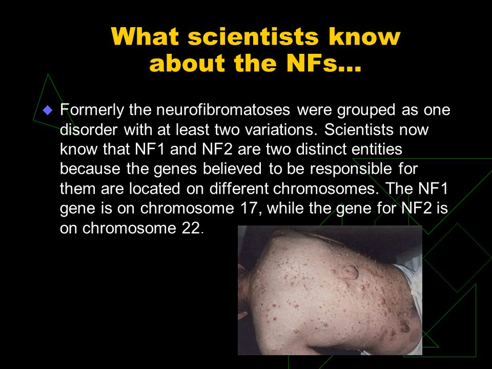 What scientists know about the NFs... u Formerly the neurofibromatoses were grouped as one disorder with at least two variations. Scientists now know