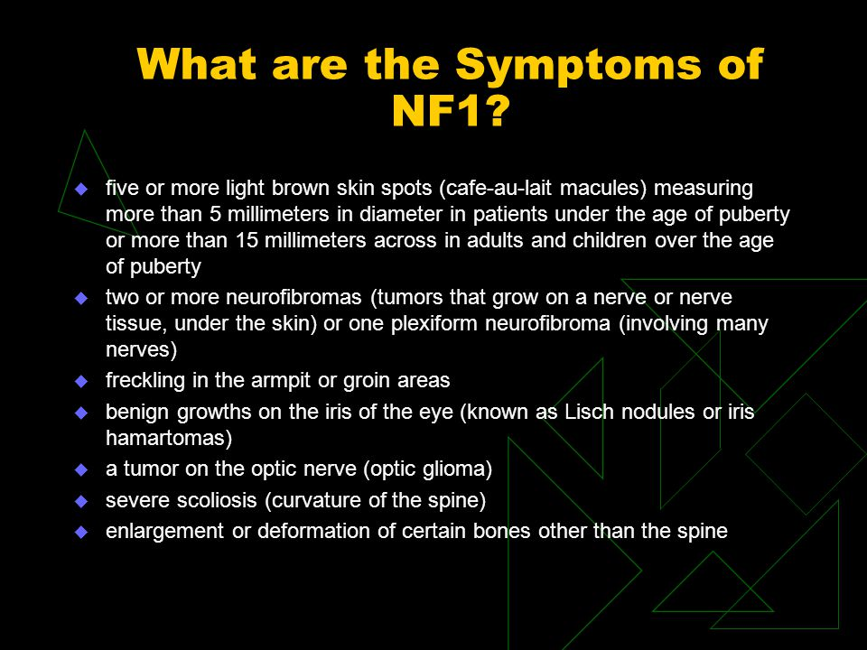 What are the Symptoms of NF1? u five or more light brown skin spots (cafe-au-lait macules) measuring more than 5 millimeters in diameter in patients u