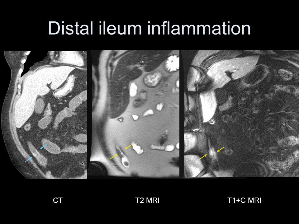 CTT1+C MRIT2 MRI Distal ileum inflammation