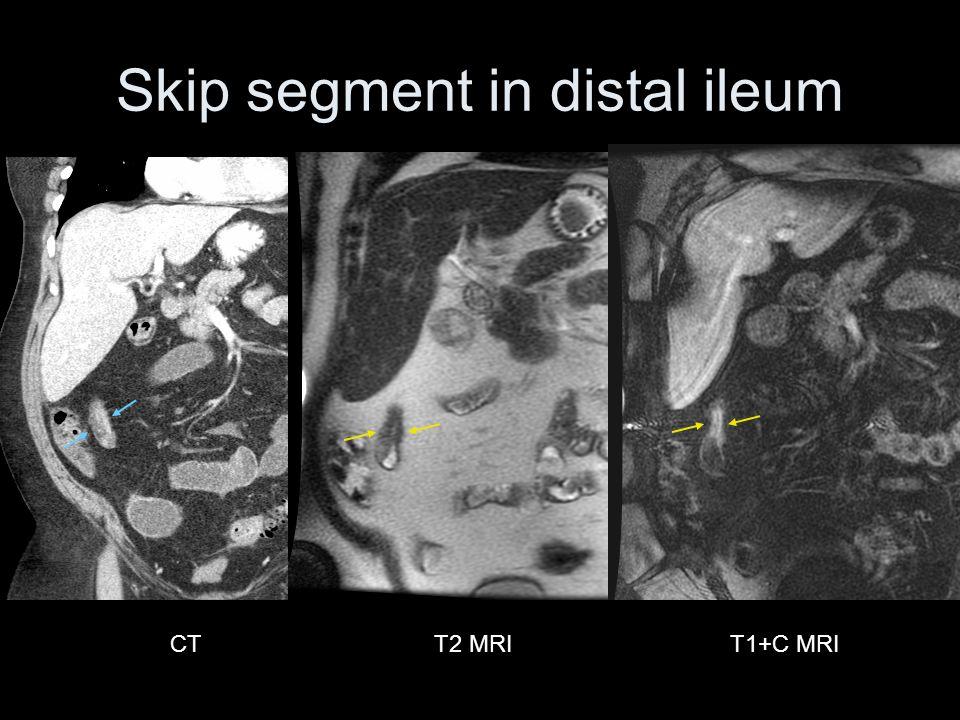 CTT1+C MRIT2 MRI Skip segment in distal ileum
