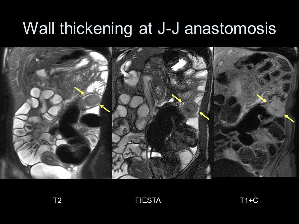 T2T1+CFIESTA Wall thickening at J-J anastomosis